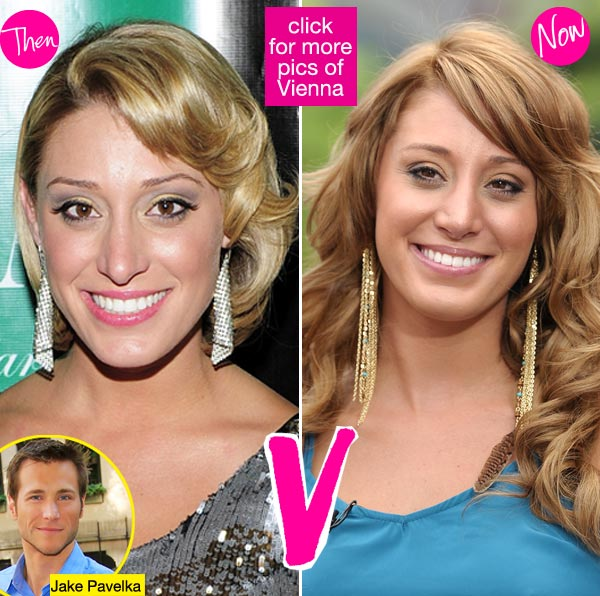 Vienna Girardi before and after surgery by Dr. Franklin Rose