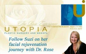 Suzi Hanks on her facial rejuvenation journey with Dr. Franklin Rose