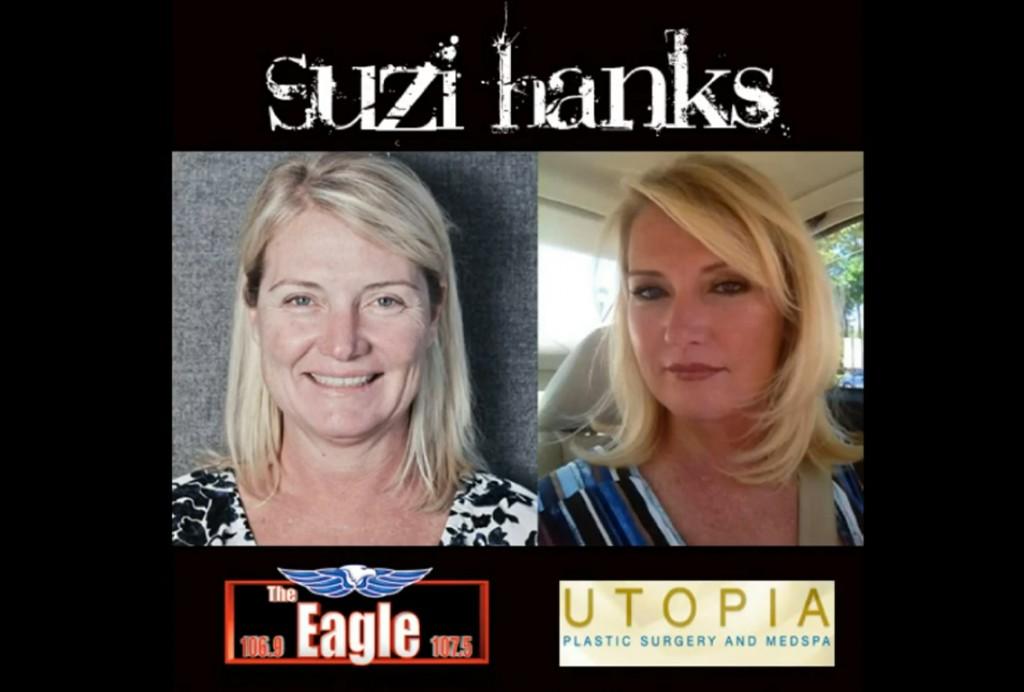 suzi-hanks-dr-franklin-rose-md facial-rejuvenation