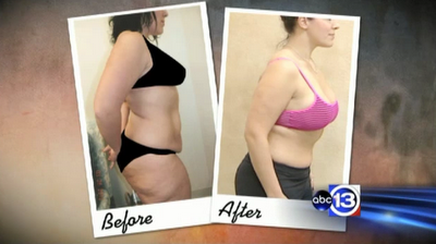 Mommy Makeover by Dr. Franklin Rose review breast augmentation tummy tuck and liposuction