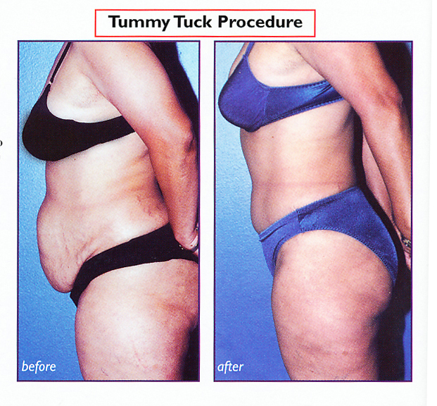 Dr. Franklin Rose's Patient photo after Tummy Tuck
