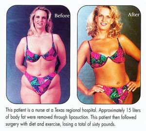 Liposuction by Dr. Franklin Rose, MD