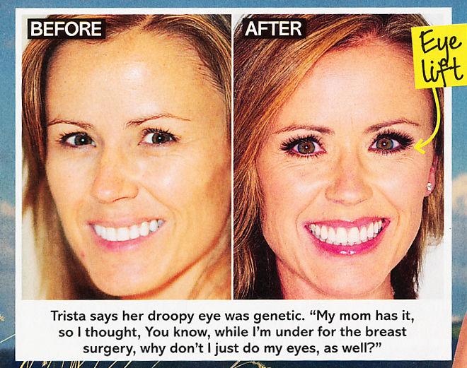 review trista before and after surgery