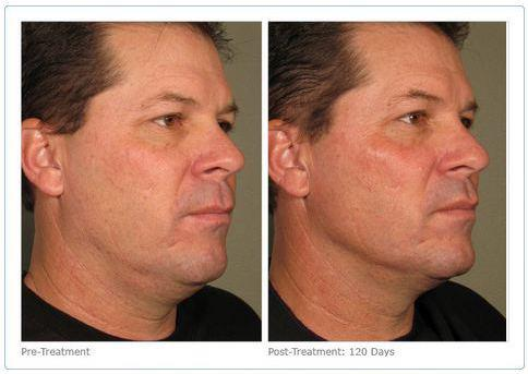 Neck and Facelift-like treatment for Men AND Women!