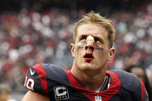 JJ-Watt-bloody-nose_culturemap