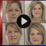 IDENTICAL TWINS Eyelid lifts – review the story featured on ABC with Dr. Franklin Rose