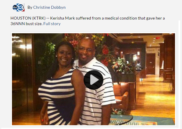 See Kerisha before, during, and after breast reduction surgery video https://abc13.com/health/size-36nnn-woman-undergoes-massive-breast-reduction/383580/