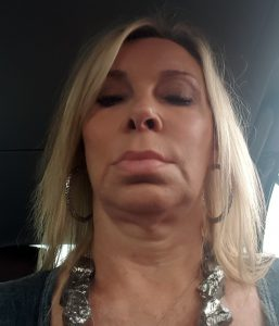 "Selfie photo of Ann BEFORE her ""facebook facelift"" surgery"