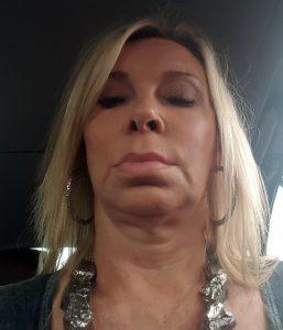 "Selfie photo of Ann BEFORE her ""facebook facelift"" surgery"