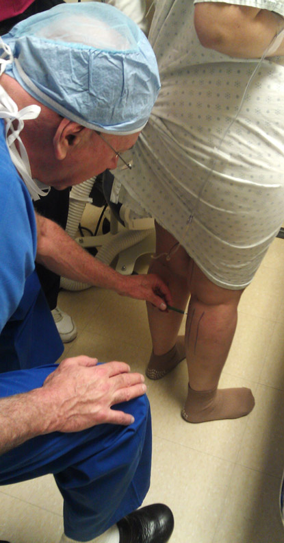 Dr. Rose marks the area for calf liposuction