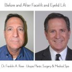 Plastic Surgery Procedures for Men are on the Rise – Even as Oil Prices Plummet