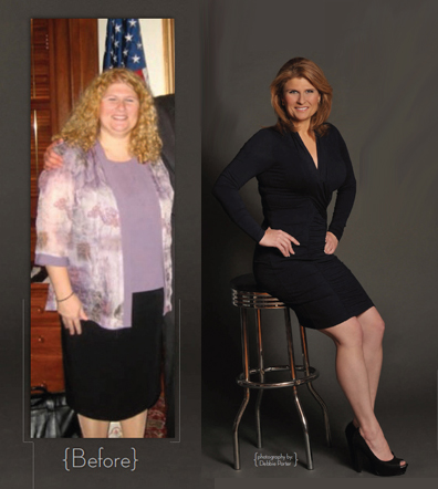 Dr. Rose's patient Andrea before and after total body makeover including body lift, breast implants and liposuction