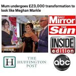 Meghan Markle Plastic Surgery Suits Her! by Dr. Franklin Rose
