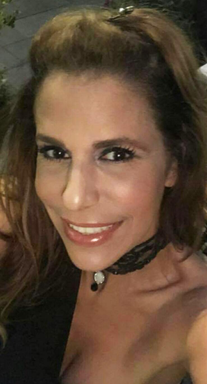 Lina Matar - after PRP facial