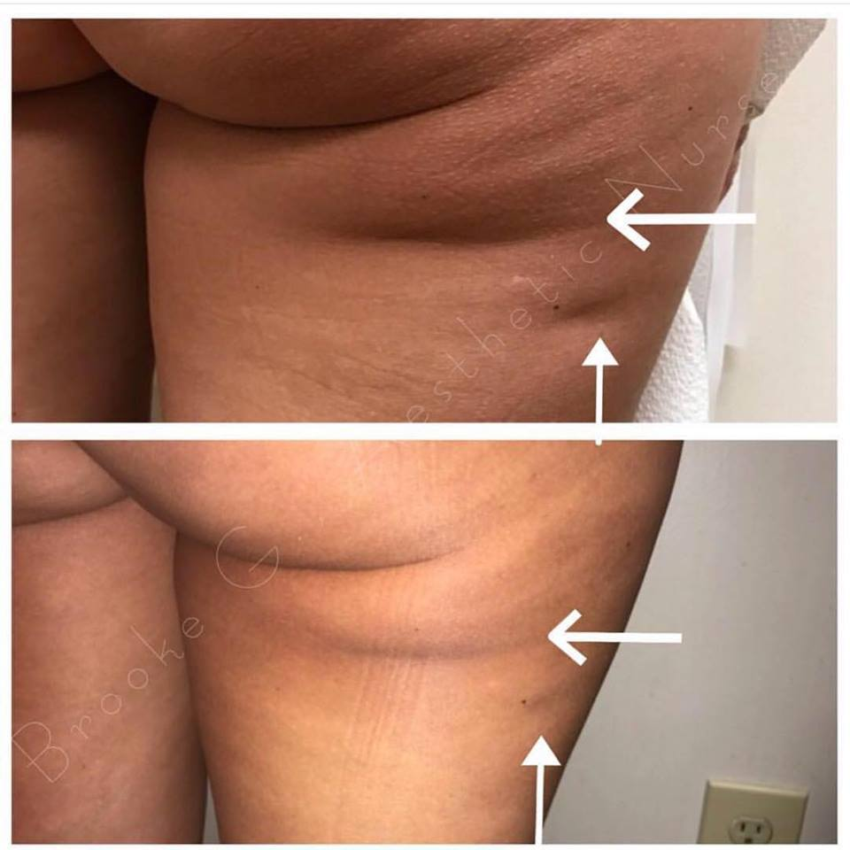 Before and after photo of our newest treatment for CELLULITE from our Aesthetic Nurse Brooke Gary of Utopia MedSpa
