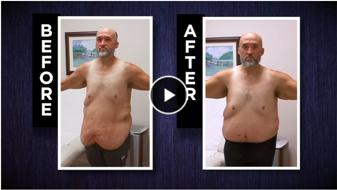 Bariatric Plastic Surgery as featured in Men's Health Magazine