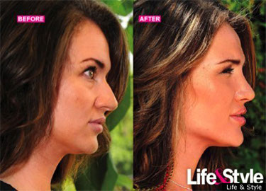 Before and after photo of Rhinoplasty by Houston plastic surgeon Dr. Franklin Rose