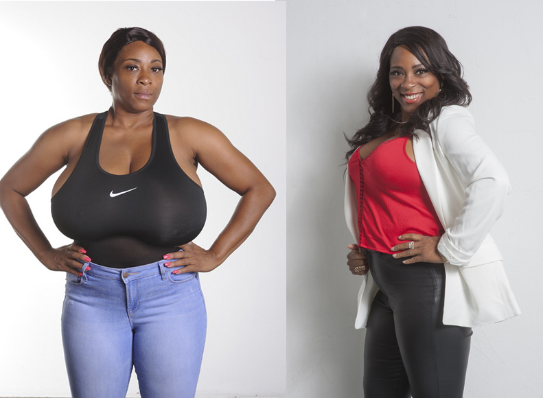 Nikisha before and after breast reduction surgery by Dr. Franklin Rose photo