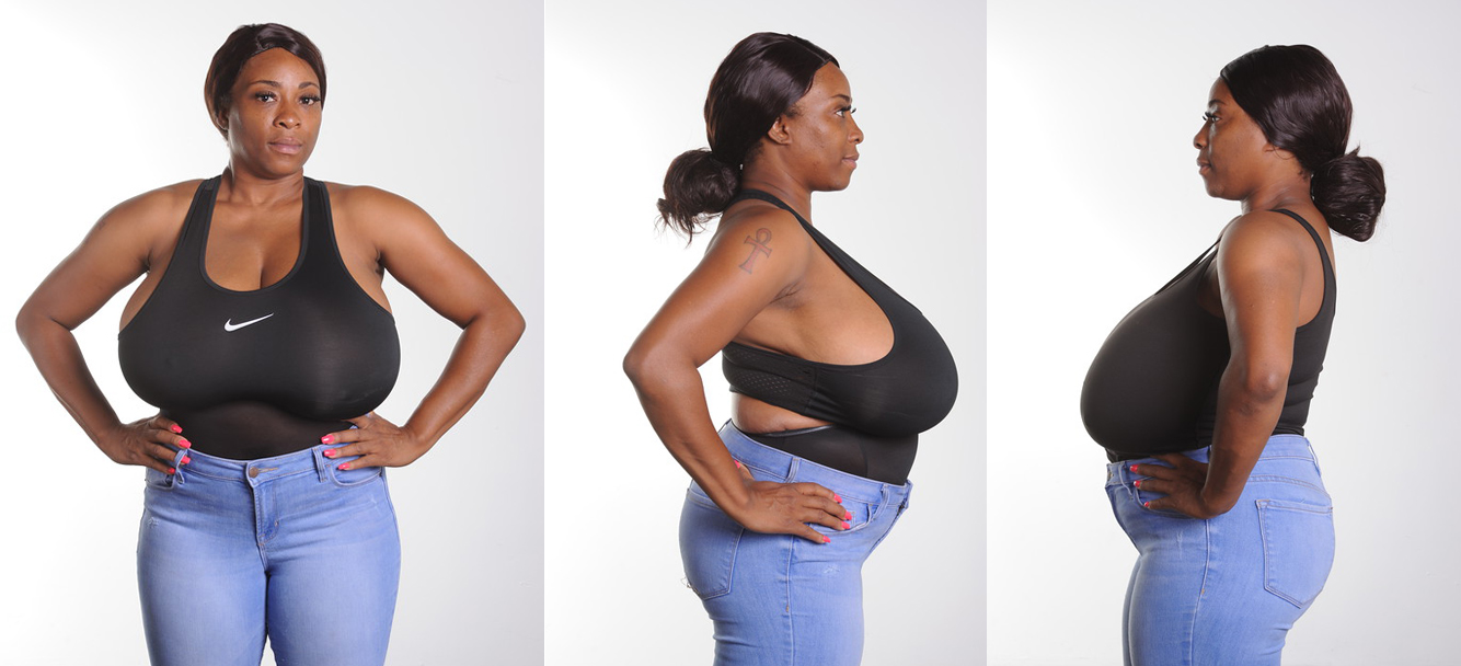 Nikisha before breast reduction surgery by Dr. Franklin Rose