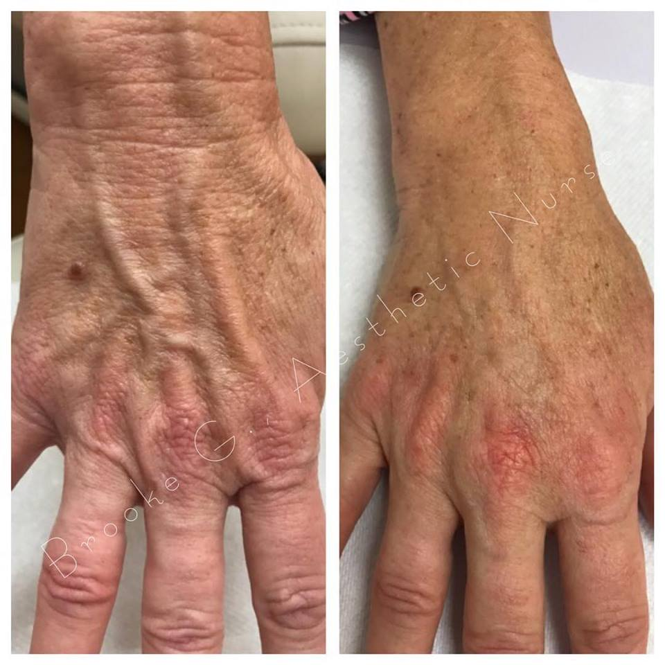 Before and after photo Restylane hand rejuvenation-Actual patient results achieved by our Aesthetic Nurse, Brooke!